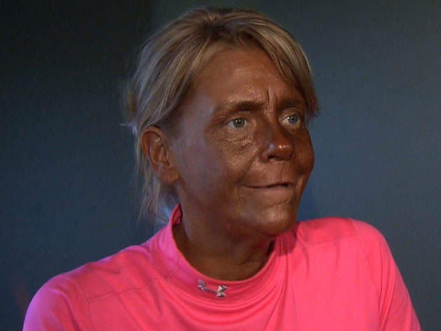 CNN WIRE: Patricia Krentcil MOM IN TANNING CASE