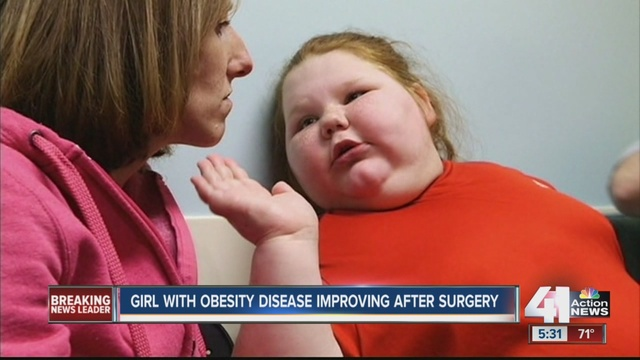 12-year-old girl recovering quickly from weight-loss surgery - + KSHB ...