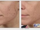 Reversing Facial Aging