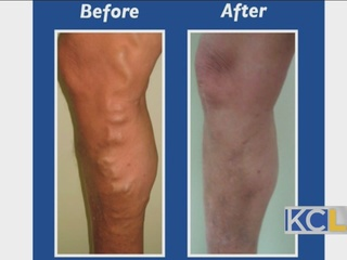 Saying Goodbye to Spider and Varicose Veins