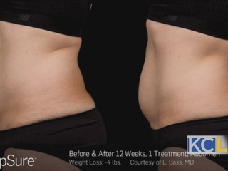 Body Contouring With SculpSure
