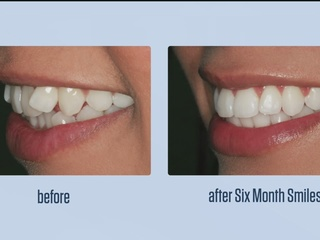 Perfect Your Smile In 6 Months