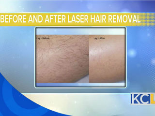 Tips for laser hair removal