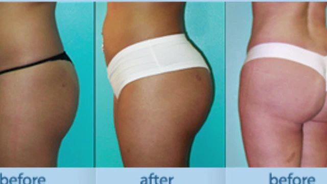 Brazillian Butt Surgery