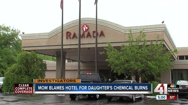 Mom Says Ramada Inn Pool Gave Daughter Blisters