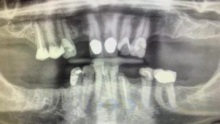 Two veterans to receive dental care for free