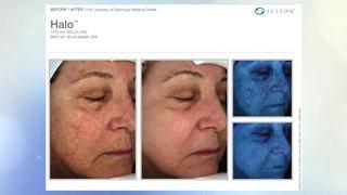 Halo treatments help treat sun-damaged skin